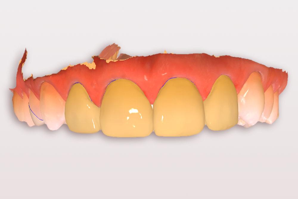 Digital erstellte Zahnrestaurationen